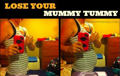 Woman with Diastasis Recti - Lose Your Mummy Tummy