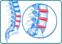 Back Pain Post - spine image