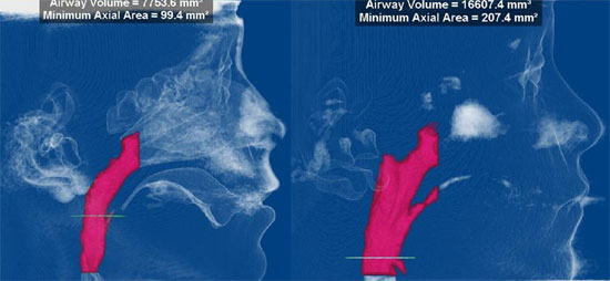 Airways and Chronic Sinusitis - Palette Expansion