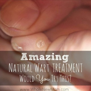 This Natural Wart Remedy is really Amazing. And unbelievable, and the cheapest one you can get. Would you try this Natural Wart Treatment - or not?