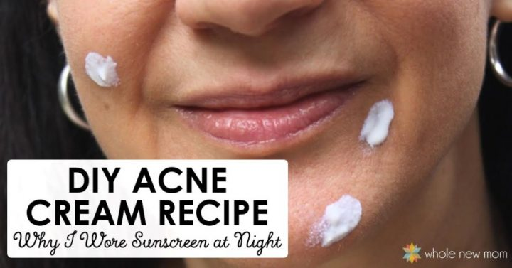 DIY acne cream on woman's face