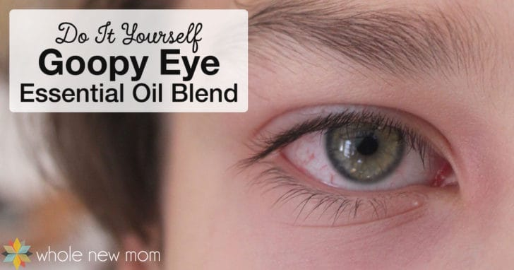 DIY Goopy Eye Essential Oil Blend