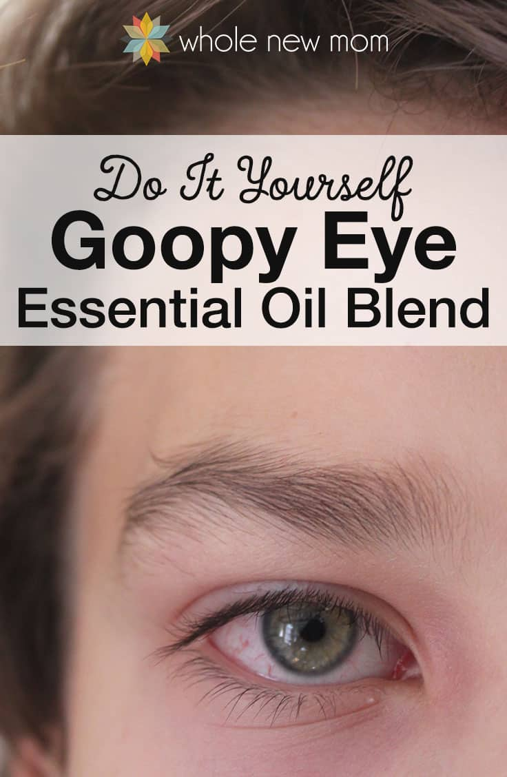 No matter what we can do to prevent things, goopy or pink eye just happens! When my son woke up with a goopy eye – this DIY Goopy Eye Essential Oils Blend helped soothe and heal his eye. This natural remedy is one we'll be keeping on hand!