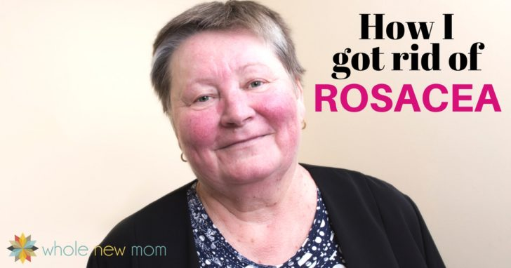 Just a Red Face – or Something More? | How I Got Rid of Rosacea