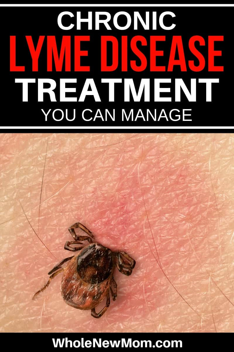 tick with head embedded in skin - Chronic Lyme Disease Treatment