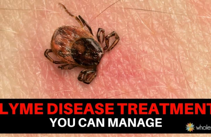 A Chronic Lyme Disease Treatment That You Can Manage