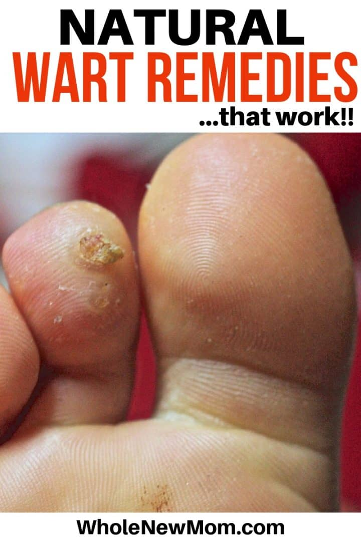 Plantars wart on big toe - Natural Remedies for Warts