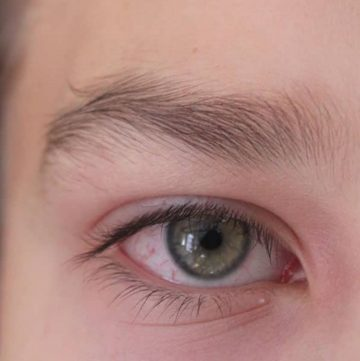 close up shot of right eye